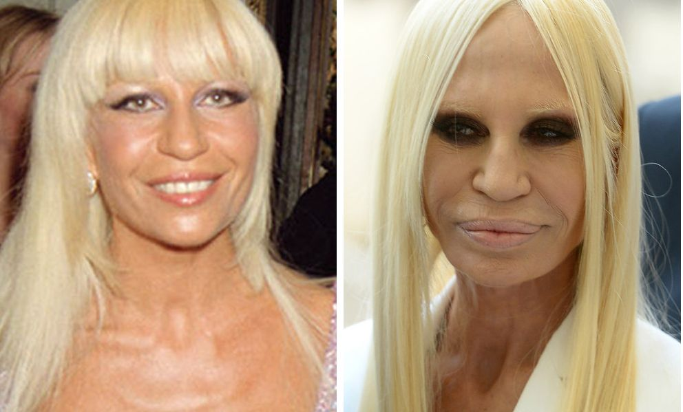 "27 Celebrities Will Make You Say ""No"" To Plastic Surgery"