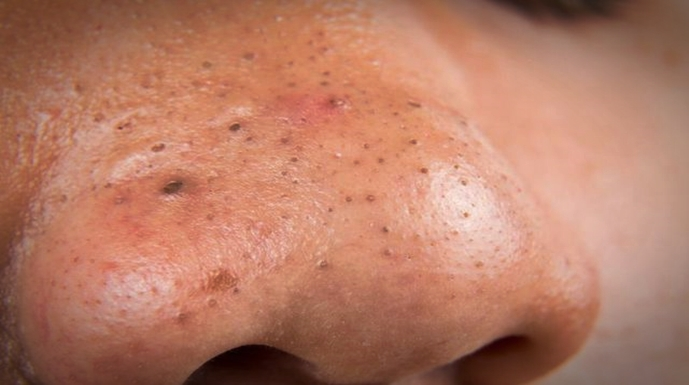 Eliminate Blackheads Using This Really Easy And Effective Trick – Try This Now