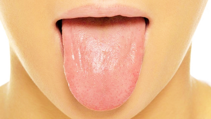 How Your Tongue Looks Like Has Something To Tell About Your Health – Take A Look
