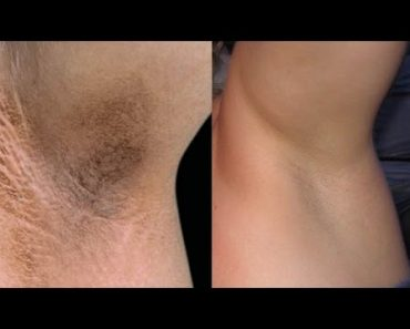 Dark coloration of the skin