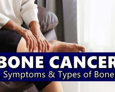 BONE CANCER – Its Causes, Symptoms & Types of Bone Cancer